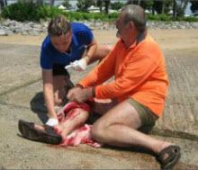 emorragia da attacco squalo